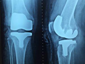 Co to jest ortopeda traumatolog?